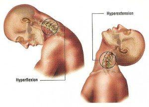 whiplash concussion illustration
